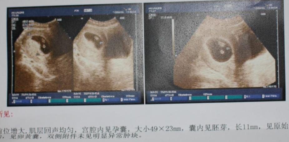 动物怀孕x光片