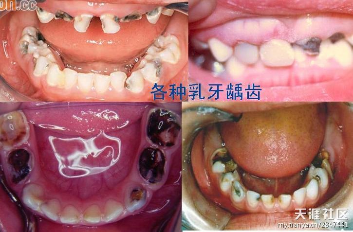 儿童龋齿形成的原因